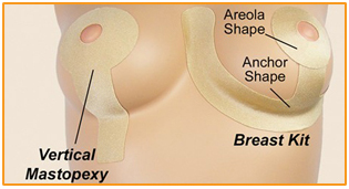 Oleeva Scar Shapes- Breast