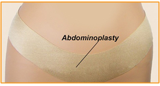 Oleeva Scar Shapes - Abdominoplasty