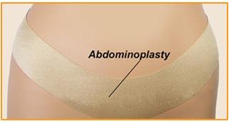 Oleeva Scar Shapes - Abdominoplasty